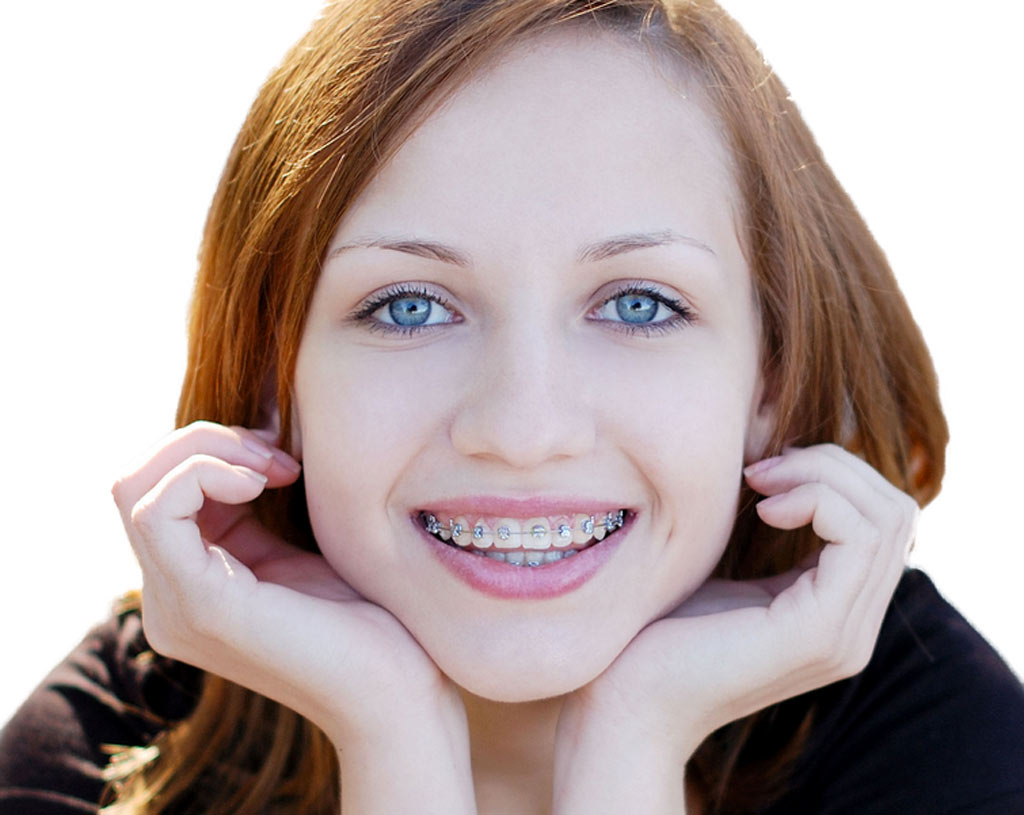 Teen Braces Galleries